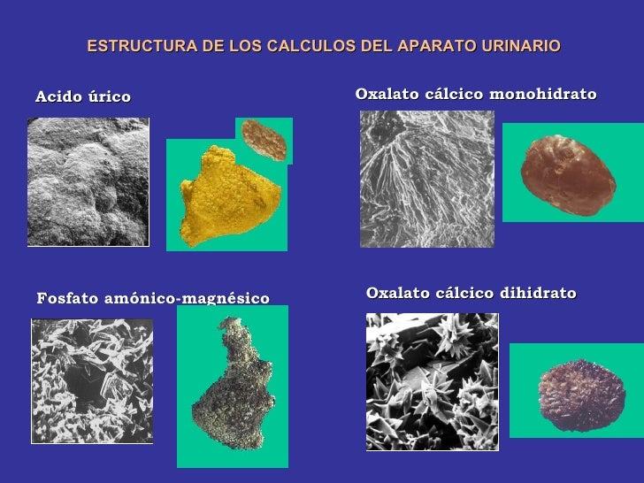 complicaciones del acido urico acido urico aves y reptiles como se quita el acido urico de las rodillas