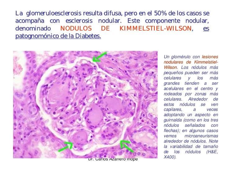 La glomeruloesclerosis resulta difusa, pero en el 50% de los casos se acompaña con esclerosis nodular. Este componente nod...