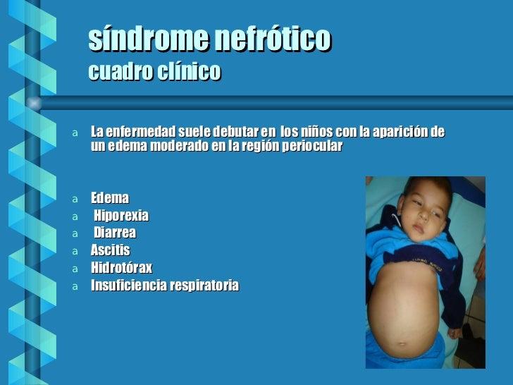 s í n d rome nefrótico cuadro clínico <ul><li>La enfermedad suele debutar en  los niños con la aparición de un edema moder...