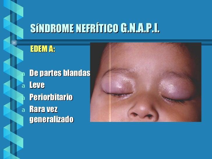 SíNDROME NEFRÍTICO   G.N.A.P.I. <ul><li>EDEM A: </li></ul><ul><li>De partes blandas  </li></ul><ul><li>Leve </li></ul><ul>...