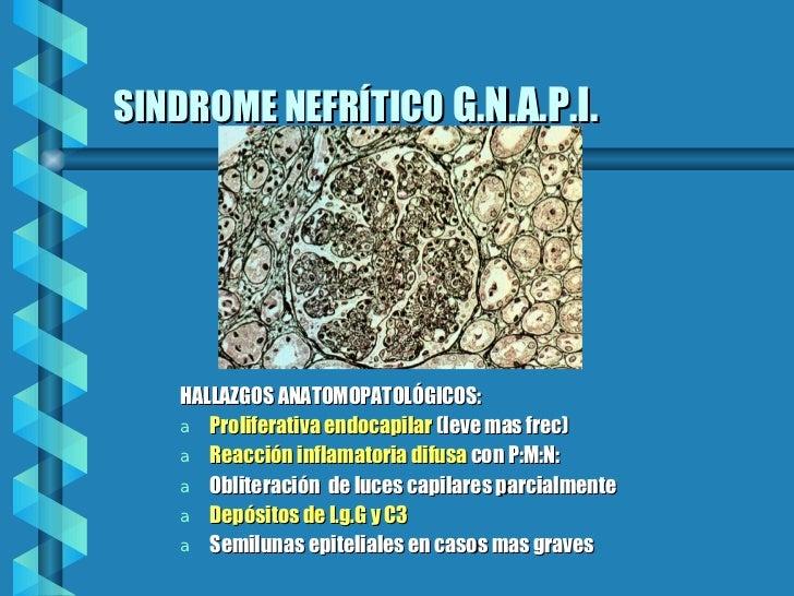 SINDROME NEFRÍTICO   G.N.A.P.I.   <ul><li>HALLAZGOS ANATOMOPATOLÓGICOS: </li></ul><ul><li>Proliferativa endocapilar  (leve...