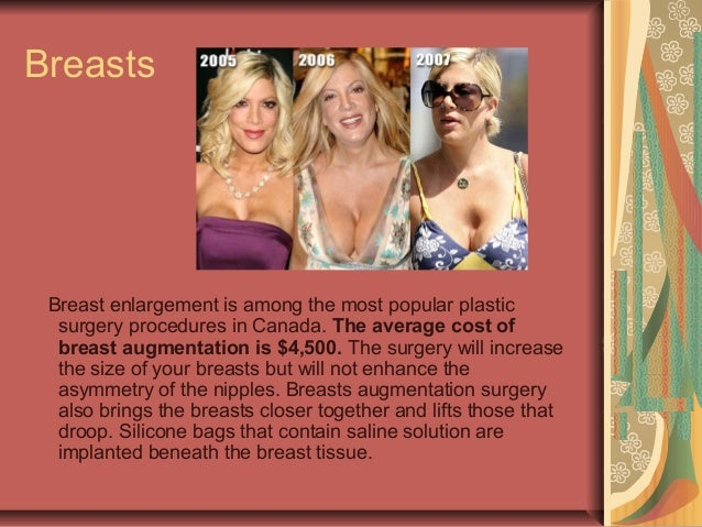 Are cost of breast reduction in canada