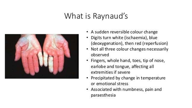 Raynauds disease essay