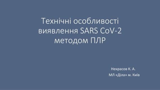 Технічні особливості виявлення SARS CoV-2 методом ПЛР