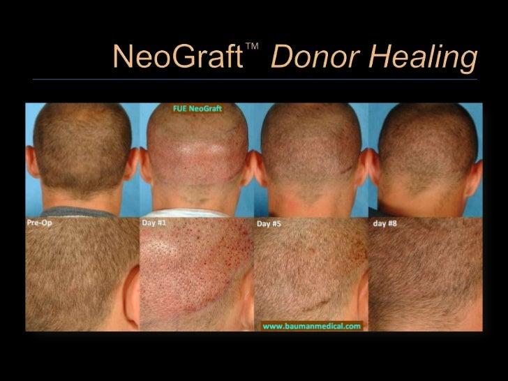 NeoGraft FUE Hair Transplant Live Surgery Workshop