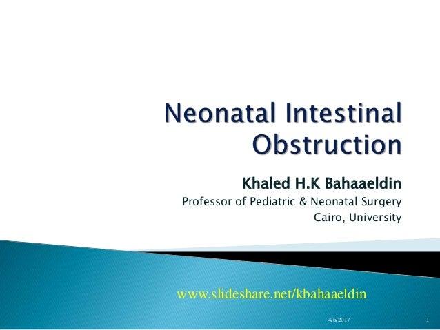 Khaled H.K Bahaaeldin Professor of Pediatric & Neonatal Surgery Cairo, University www.slideshare.net/kbahaaeldin 4/6/2017 1