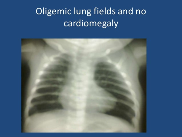 neonatal cardiac emergency