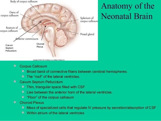 Anatomy of the Neonatal Brain Cerebellum  Posterior cranial  fossa  2 Hemispheres connected by Vermis  3 Pairs of Nerve...