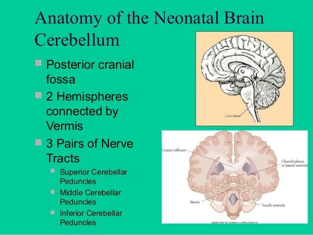 "Anatomy of the Neonatal Skull  Fontanelles (""Soft Spots"")  Spaces between bones of the skull"