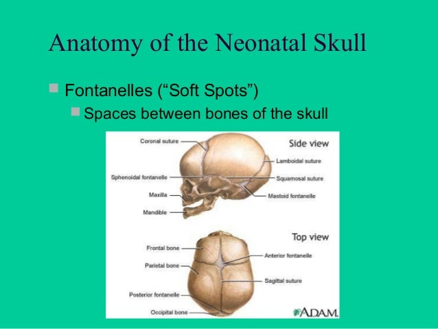 Indications for Sonographic Exam  Cranial abnormality found on pre-natal sonogram  Increasing head circumference with or...