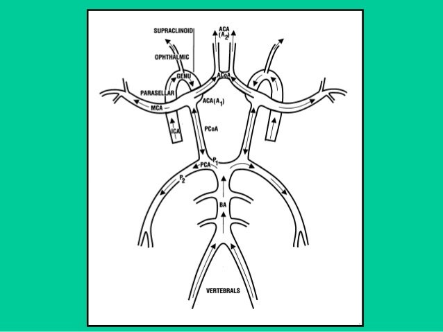 Hemorrhagic Pathology  Grades  Based on the extension of the hemorrhage  Ventricular measurement  Mild dilation: 3-10 ...