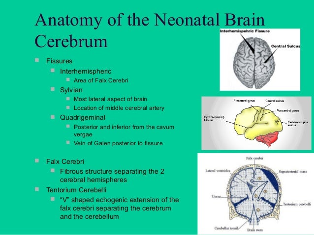 Anatomy of the Neonatal Brain  Meninges  Dura Mater  Arachnoid  Pia Mater   Cerebral Spinal Fluid (CSF)  Surrounds a...