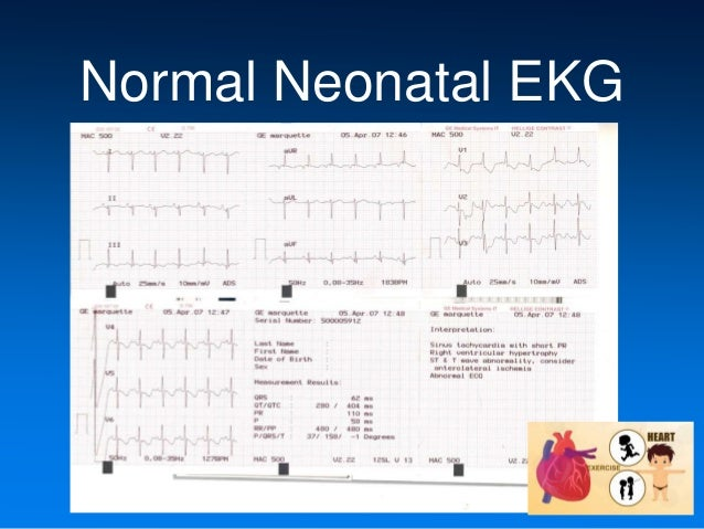 neonatal ekg rh slideshare net Pediatric EKG a guide to neonatal and pediatric ecgs free download