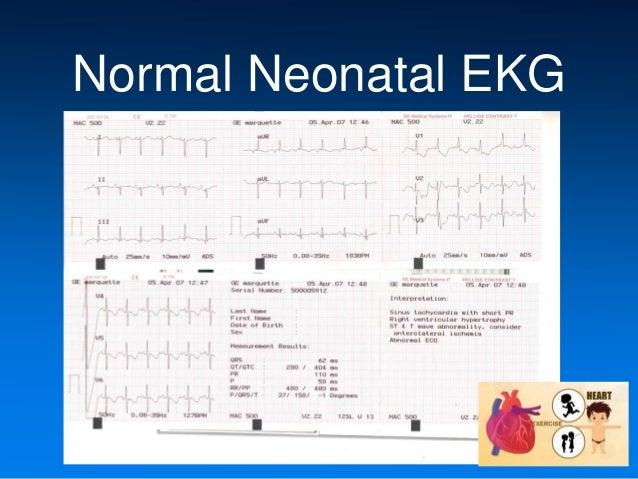 Neonatal Ekg