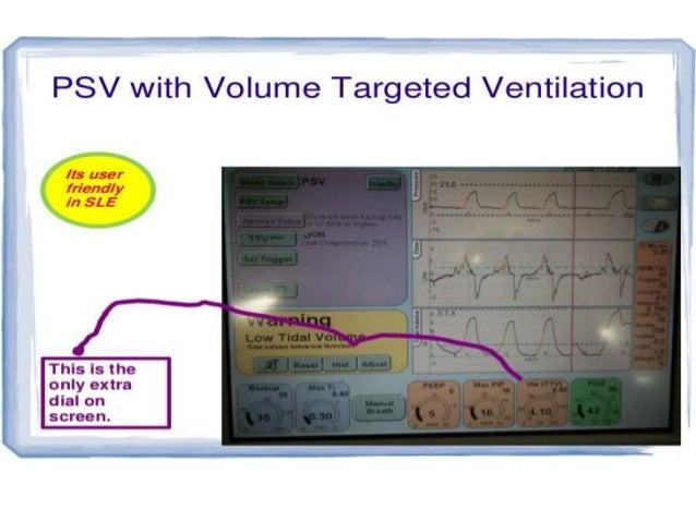 Volume Guarantee waveform: