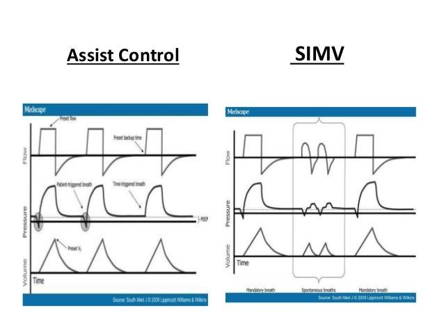 Assist Control SIMV