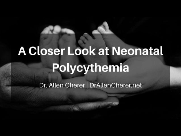 An Overview: Neonatal Polycythemia