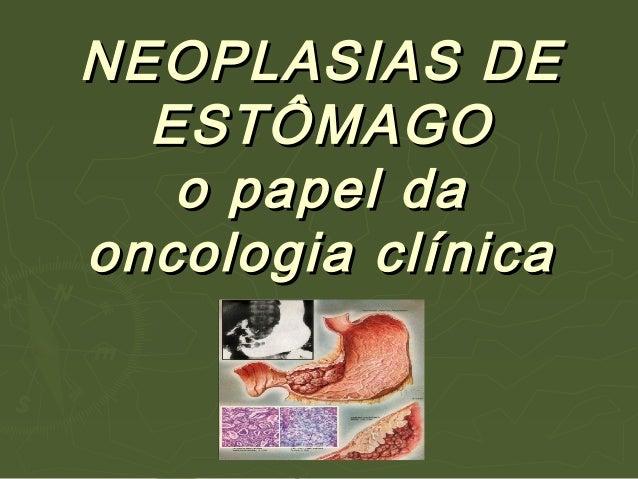 NEOPLASIAS DENEOPLASIAS DEESTÔMAGOESTÔMAGOo papel dao papel daoncologia clínicaoncologia clínica