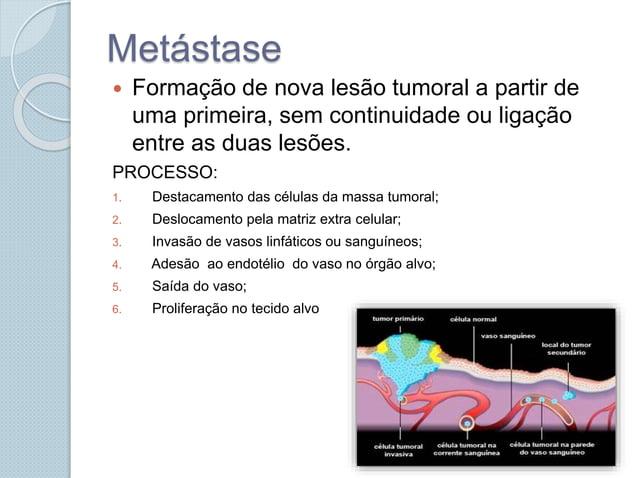 Metástase  Formação de nova lesão tumoral a partir de uma primeira, sem continuidade ou ligação entre as duas lesões. PRO...