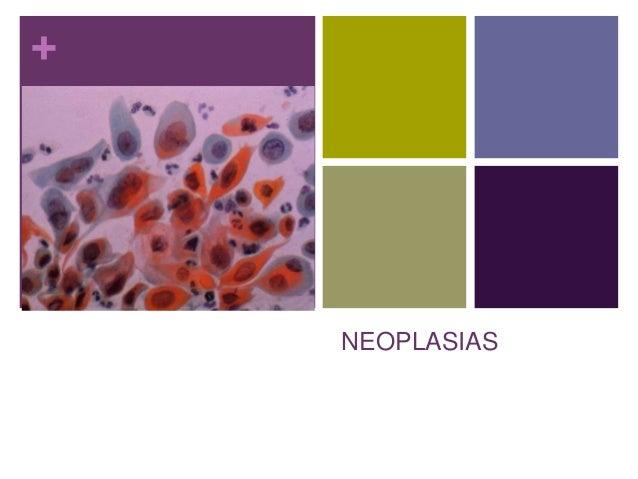 + NEOPLASIAS