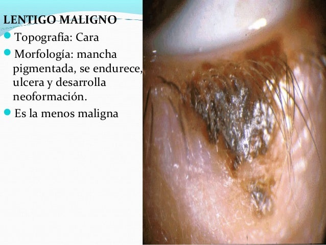 El tratamiento de los papilomas sobre el cuello por el aceite de ricino