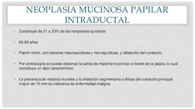 NEOPLASIA MUCINOSA PAPILAR INTRADUCTAL • Constituye de 21 a 33% de las neoplasias quísticas • 60-80 años • Patrón mixto, c...