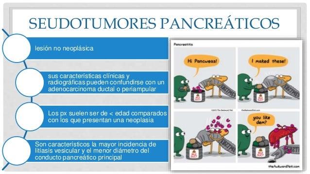 SEUDOTUMORES PANCREÁTICOS lesión no neoplásica sus características clínicas y radiográficas pueden confundirse con un aden...