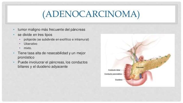 (ADENOCARCINOMA) • tumor maligno más frecuente del páncreas • se divide en tres tipos • polipoide (se subdivide en exofíti...