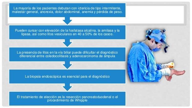 El tratamiento de elección es la resección pancreatoduodenal o el procedimiento de Whipple La biopsia endoscópica es esenc...