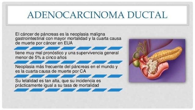ADENOCARCINOMA DUCTAL El cáncer de páncreas es la neoplasia maligna gastrointestinal con mayor mortalidad y la cuarta caus...
