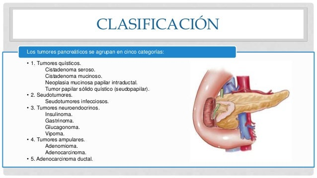 CLASIFICACIÓN • 1. Tumores quísticos. Cistadenoma seroso. Cistadenoma mucinoso. Neoplasia mucinosa papilar intraductal. Tu...