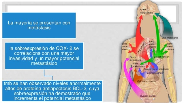 La mayoria se presentan con metástasis la sobreexpresión de COX- 2 se correlaciona con una mayor invasividad y un mayor po...