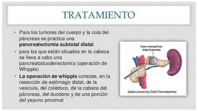 TRATAMIENTO • Para los tumores del cuerpo y la cola del páncreas se practica una pancreatectomía subtotal distal • para lo...