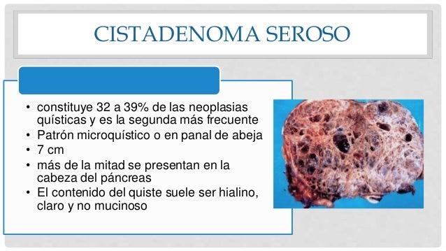 CISTADENOMA SEROSO • constituye 32 a 39% de las neoplasias quísticas y es la segunda más frecuente • Patrón microquístico ...