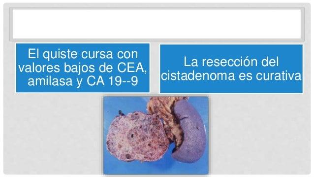 El quiste cursa con valores bajos de CEA, amilasa y CA 19--9 La resección del cistadenoma es curativa