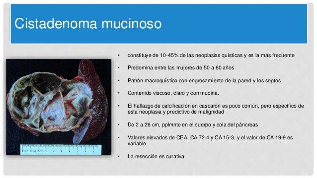 Cistadenoma mucinoso • constituye de 10-45% de las neoplasias quísticas y es la más frecuente • Predomina entre las mujere...