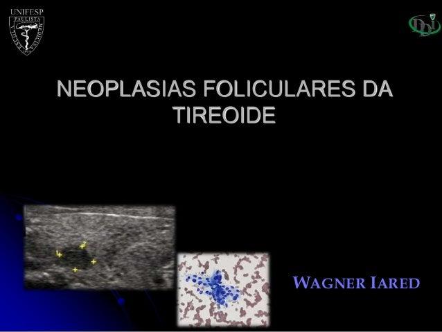 WAGNER IARED NEOPLASIAS FOLICULARES DA TIREOIDE