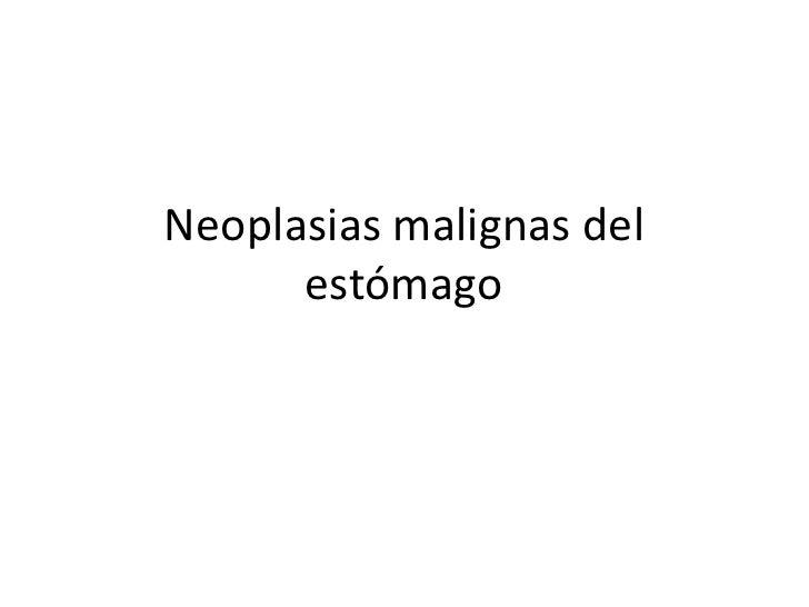 Neoplasias malignas del estómago<br />