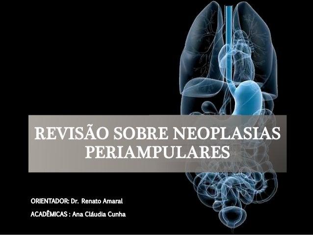 REVISÃO SOBRE NEOPLASIAS  PERIAMPULARES  ORIENTADOR: Dr. Renato Amaral  ACADÊMICAS : Ana Cláudia Cunha