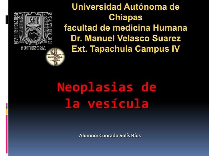 Neoplasias de la vesícula  Alumno: Conrado Solís Ríos