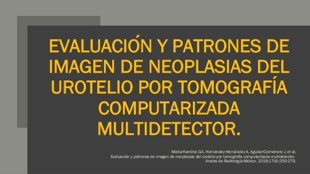 EVALUACIÓN Y PATRONES DE IMAGEN DE NEOPLASIAS DEL UROTELIO POR TOMOGRAFÍA COMPUTARIZADA MULTIDETECTOR. Motta-Ramírez GA,...