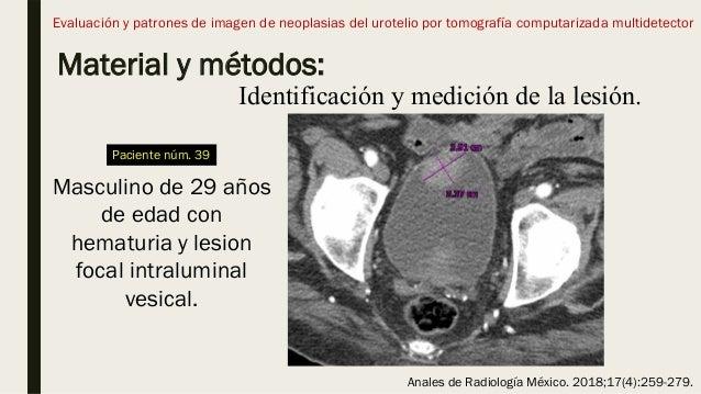 Material y métodos: Evaluación y patrones de imagen de neoplasias del urotelio por tomografía computarizada multidetector ...