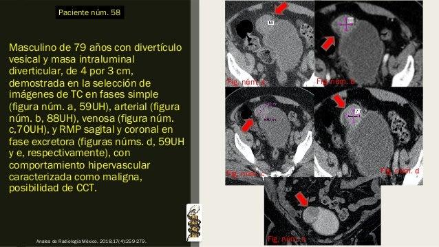 Masculino de 79 años con divertículo vesical y masa intraluminal diverticular, de 4 por 3 cm, demostrada en la selección d...