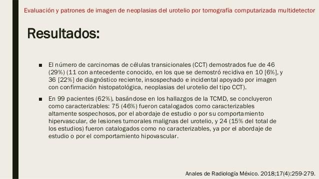 Resultados: ■ El número de carcinomas de células transicionales (CCT) demostrados fue de 46 (29%) (11 con antecedente cono...