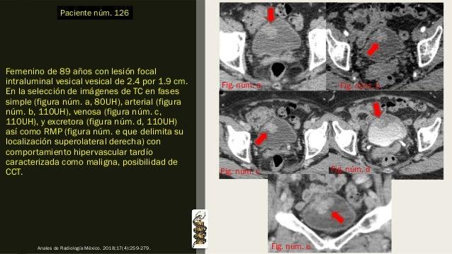 Femenino de 89 años con lesión focal intraluminal vesical vesical de 2.4 por 1.9 cm. En la selección de imágenes de TC en ...