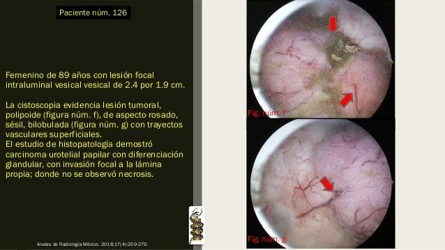 Femenino de 89 años con lesión focal intraluminal vesical vesical de 2.4 por 1.9 cm. La cistoscopia evidencia lesión tumor...