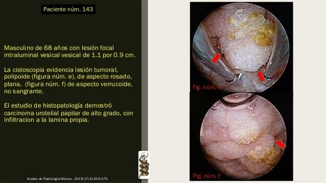 Masculino de 68 años con lesión focal intraluminal vesical vesical de 1.1 por 0.9 cm. La cistoscopia evidencia lesión tumo...