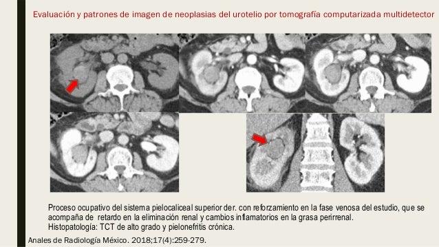 Proceso ocupativo del sistema pielocaliceal superior der. con reforzamiento en la fase venosa del estudio, que se acompaña...