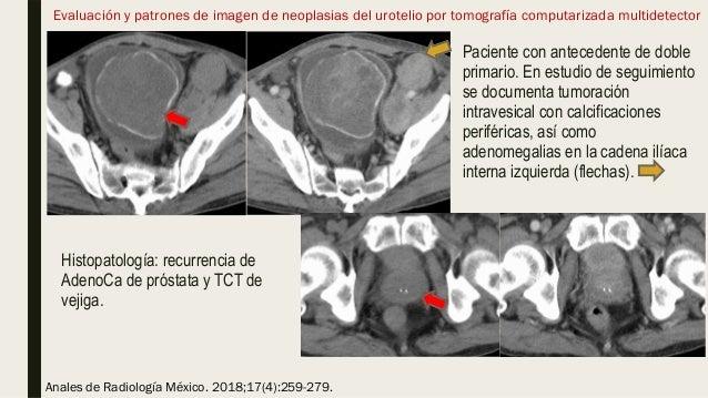 Evaluación y patrones de imagen de neoplasias del urotelio por tomografía computarizada multidetector Histopatología: recu...