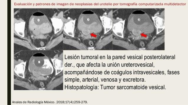 Evaluación y patrones de imagen de neoplasias del urotelio por tomografía computarizada multidetector Anales de Radiología...